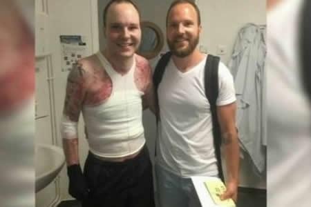 El-95%-de-su-piel-se-quemo-y-salvo-su-vida-gracias-a-los-trasplantes-de-su-hermano-gemelo